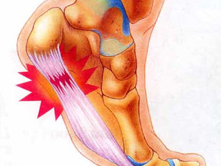 Plantar Fasciitis – What is it? What causes it? How do I treat it?