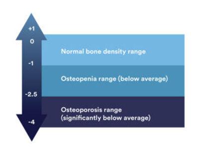 bone-density-t-score-320x243.jpg