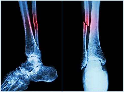 orthoatlanta_facts_about_bone_fractures_