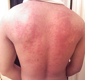 Urticaria at the London Allergy Clinic