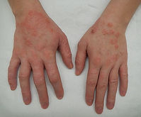 Eczema at the London Allergy Clinic
