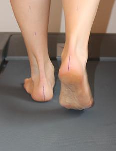 Podoloog voetproblemen zolen Ingelmunster