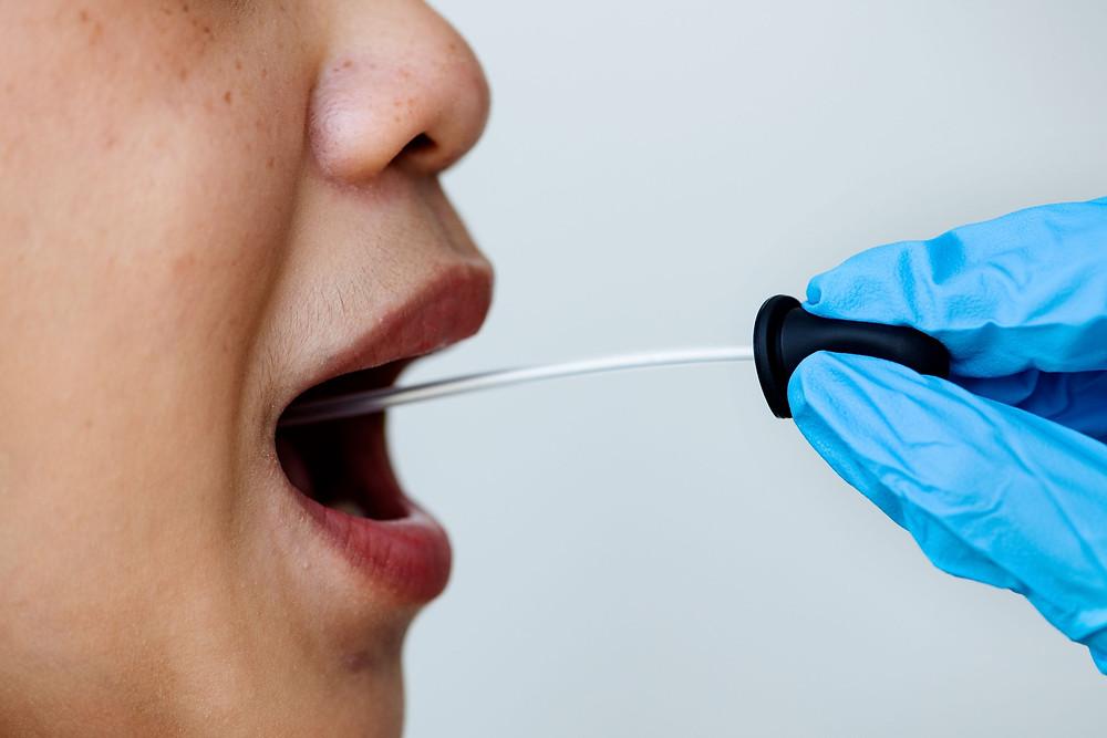Hallazgo científico afirma que el coronavirus puede invadir las células de la boca.