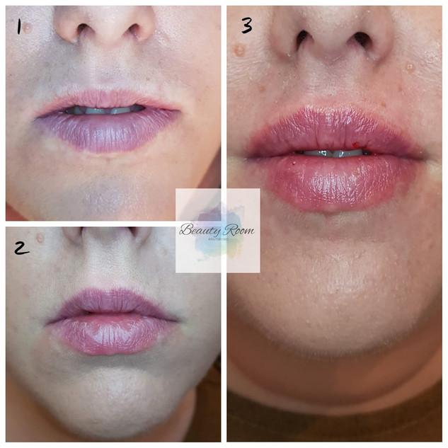 1.6ml no needle lip filler