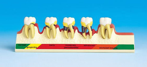 Periodontal Disease Model (Nissin)