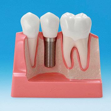 Implant v Bridge Model (Nissin)
