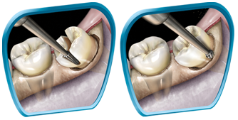 Burs - Sterile Surgical 65mm Shank #3 Carbide - Pkt/10