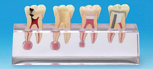 Endodontic Education Model (Nissin)