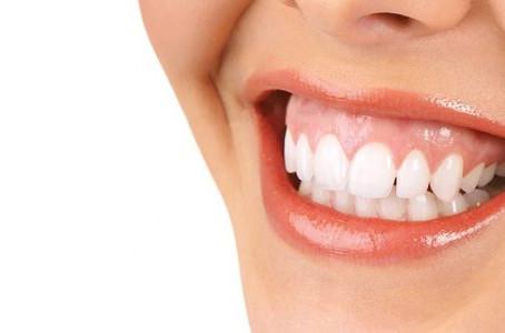 ¿Crees que tienes una sonrisa gingival? ¡Te contamos a que se debe y cómo puedes solucionarla!