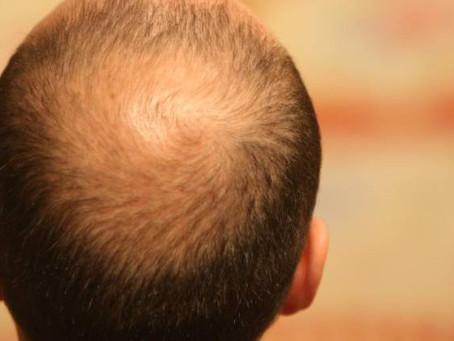¡Dile basta a la pérdida de cabello y revierte la calvicie de manera efectiva!