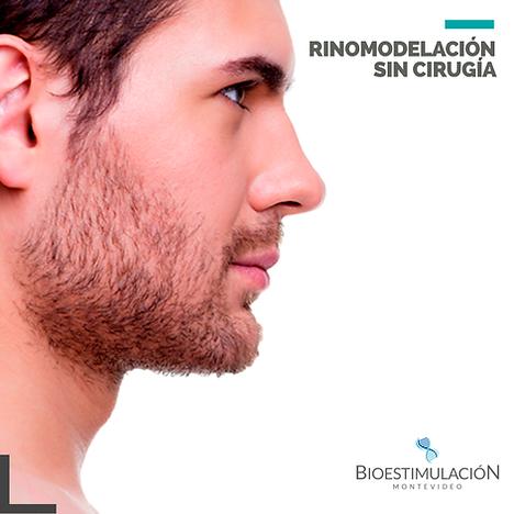 RINOMODELACIÓN_hombres.png