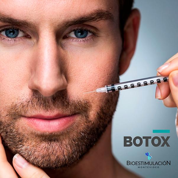 botox-para-hombres-montevideo