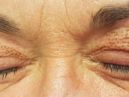 Rejuvenece tu mirada sin cirugías – Blefaroplastia sin cirugía