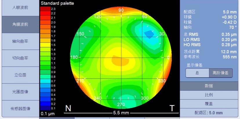 蔡司前導波驗光。視康佳眼鏡。蔡司驗光中心。優視力專家。