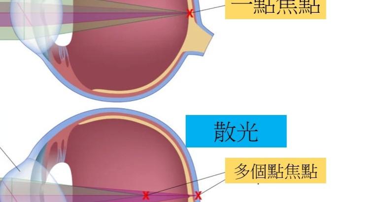 散光眼鏡 - 散光老花眼鏡 |視康佳蔡司驗光中心 | 散光-症狀-診斷