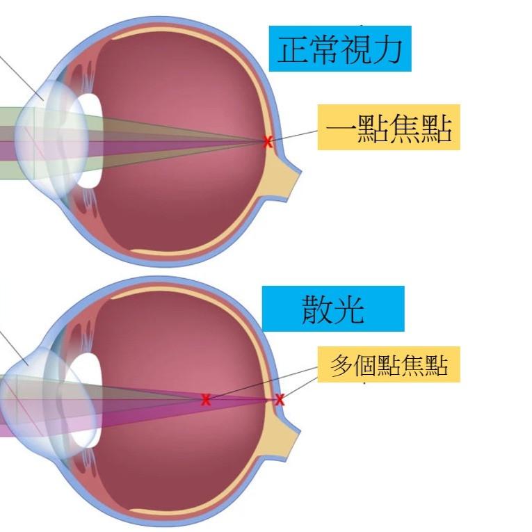 眼球具有略微不規則的曲率時,就會發生散光