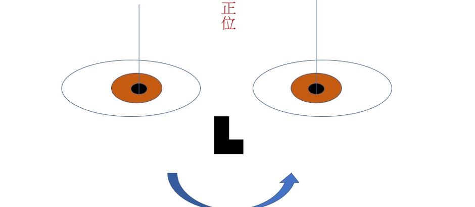 斜視(斜視/鬥雞眼/脫窗)治療?斜視配眼鏡。眼睛錯位。視康佳眼鏡