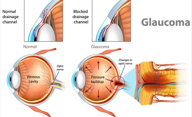 什麼是青光眼 ?
