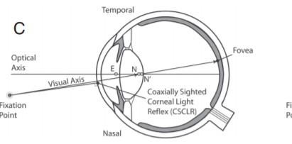 視軸偏離矯正 | 視康佳。專業驗光