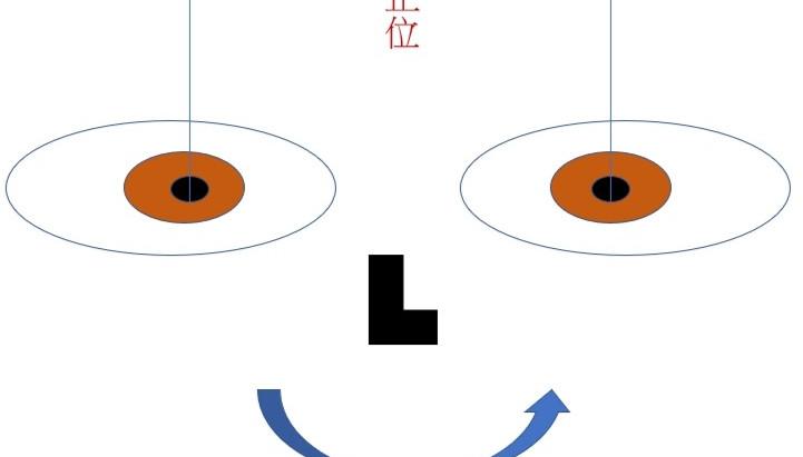斜視(斜視/鬥雞眼/脫窗)治療?斜視配眼鏡 |視康佳蔡司驗光中心 |眼睛錯位。