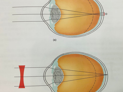 高度近視(Myopia)