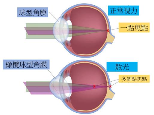 散光眼鏡   散光老花眼鏡。 散光症狀。散光診斷。散光配眼鏡時機。驗光處方怎麼看? 散光鏡片選擇。散光解決方案。視康佳眼鏡。彰化。員林