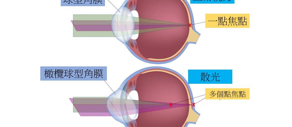 散光眼鏡 | 散光老花眼鏡。 散光症狀。散光診斷。散光配眼鏡時機。驗光處方怎麼看? 散光鏡片選擇。散光解決方案。視康佳眼鏡。彰化。員林