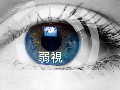 弱視(Amblyopia)