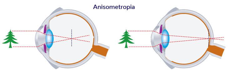 什麼是不等視Anisometropia (屈光參差)?視差。視康佳眼鏡。碩士驗光師。