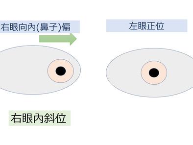 什麼是內斜視 Esotropia? | 內斜視配眼鏡 彰化視康佳眼鏡。彰化。員林眼鏡行