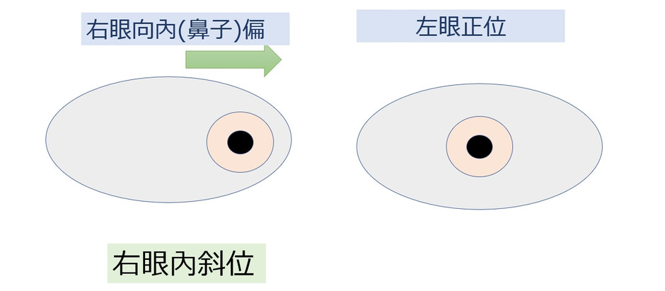 什麼是內斜視 Esotropia? | 內斜視配眼鏡: 視康佳蔡司視光中心。彰化-員林眼鏡行
