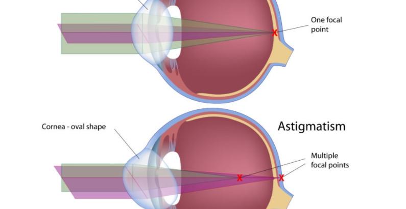 什麼是散光 ? 散光的症狀 ? 散光類型 ? 散光配眼鏡 技巧