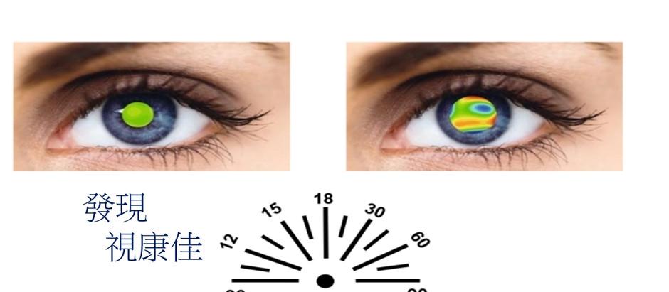 雙眼視差、兩眼視覺的重要性。視康佳眼鏡。彰化驗光師。