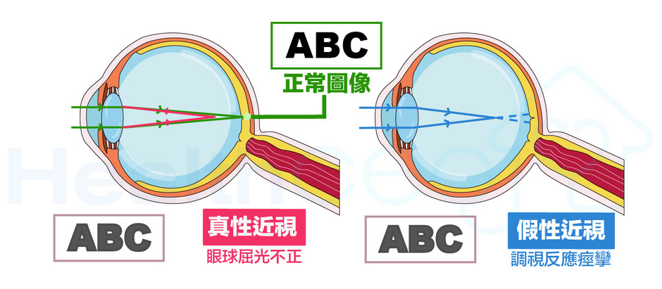 假性近視。視康佳眼鏡
