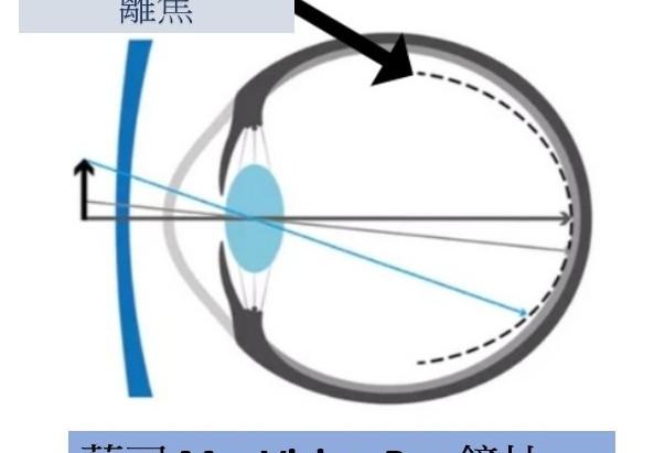 兒童近視鏡片 - 視康佳蔡司驗光中心 | 視光碩士 驗光師 | 預約制。