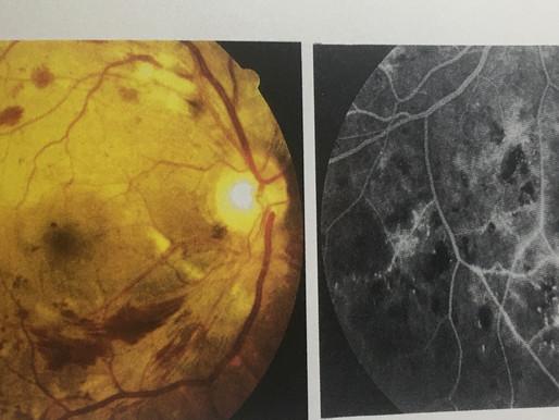 糖尿病影響眼睛健康