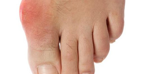 BUNIONS AND BUNIONETTES (TAILOR'S BUNIONS)