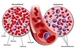 Leukaemia.png