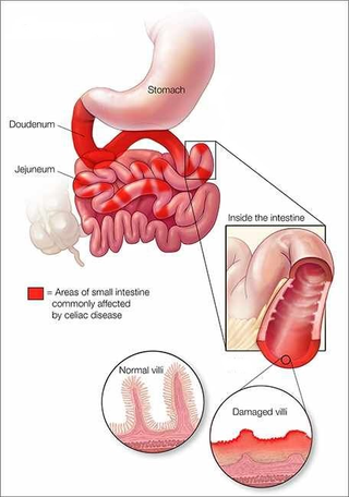 CELIAC DISEASE: A FAVOURITE MEAL WRECKERStayWellWorld