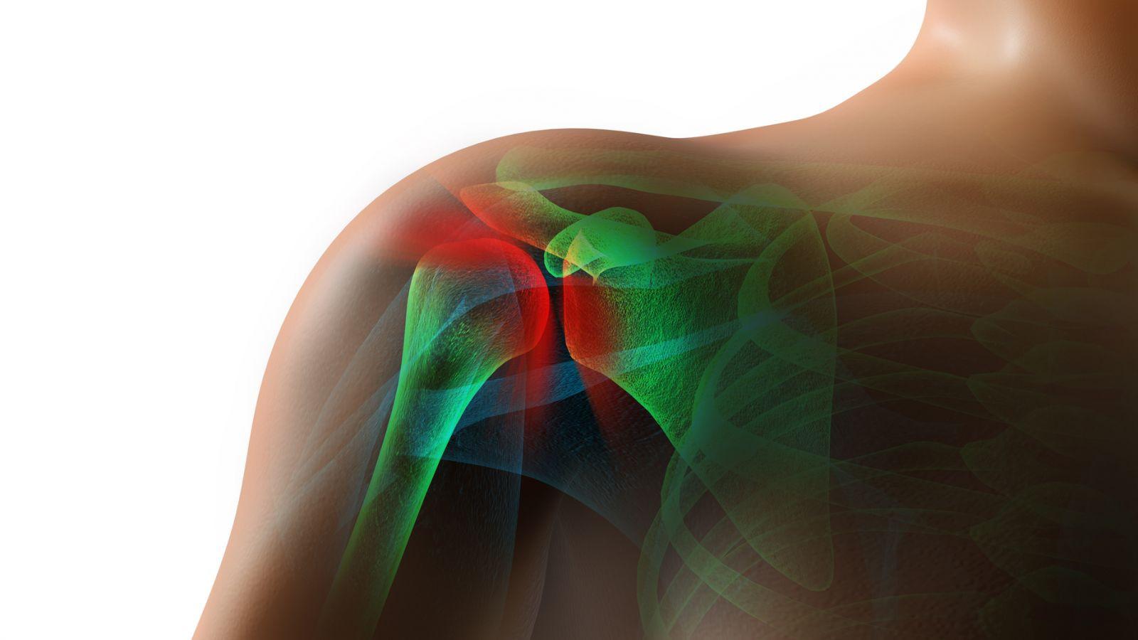 frozen-shoulder-joint-pain-jqbaker-iStoc
