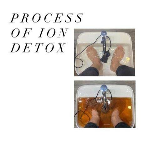 Ion Detox Treatment