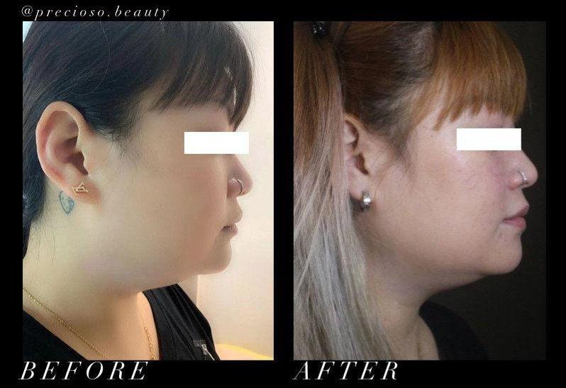 Deep Beauty Double Chin Treatment