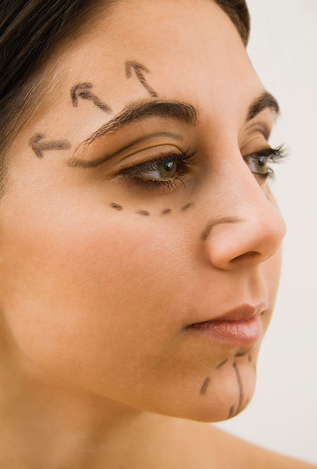 Woman with face marked to indicate surgery prep