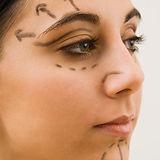 Cirugía plástica ocular en clínica de ojos