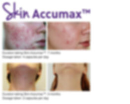 Before and after Accumax