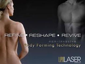 Lapex Non-invasive LaserLipo