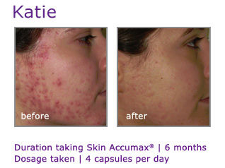 Acne Treatment Accumax
