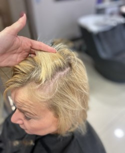 Before Image - Thinning Hair