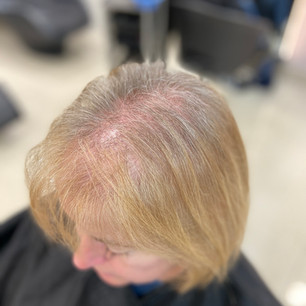 Before image - Hair Thinning