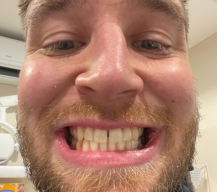 Beard-Before.png